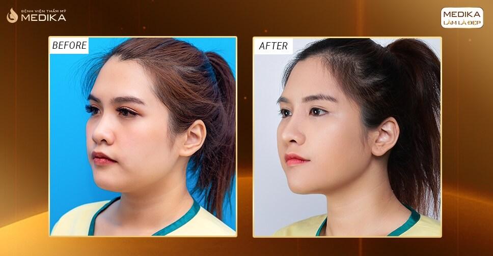 Tin tức nâng mũi S line mang đến dáng mũi đẹp tự nhiên bởi Bệnh viện thẩm mỹ MEDIKA