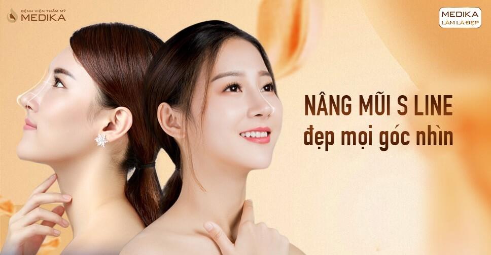 Tin tức nâng mũi S line mang đến dáng mũi đẹp tự nhiên từ Bệnh viện thẩm mỹ MEDIKA