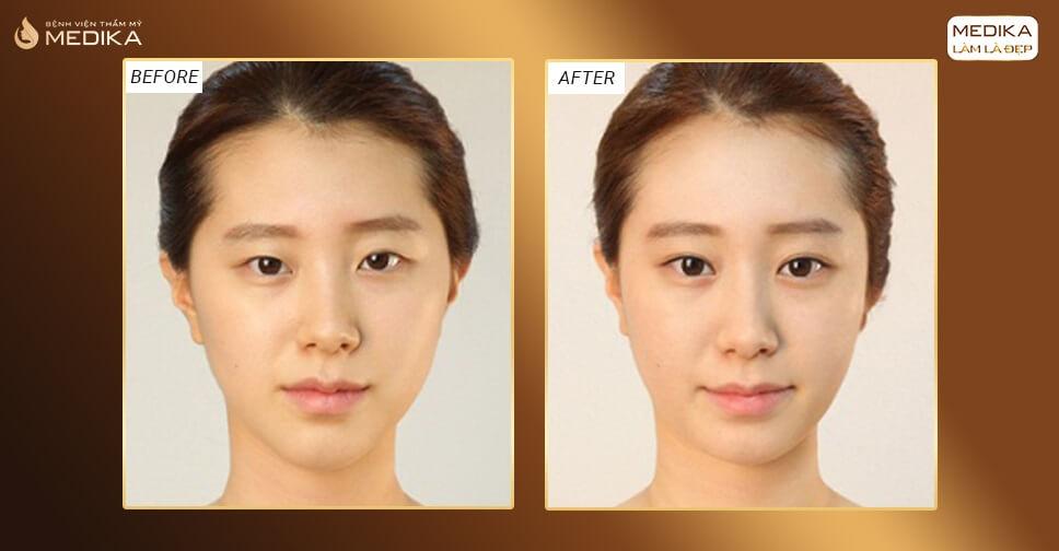 Bấm mí mắt có duy trì hiệu quả dài lâu như lời đồn?