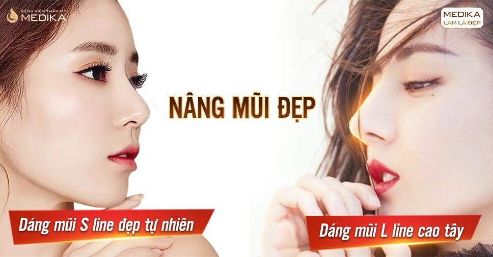 Biến chứng sau khi nâng mũi đẹp và cách xử lý từ chuyên gia Bệnh viện thẩm mỹ MEDIKA