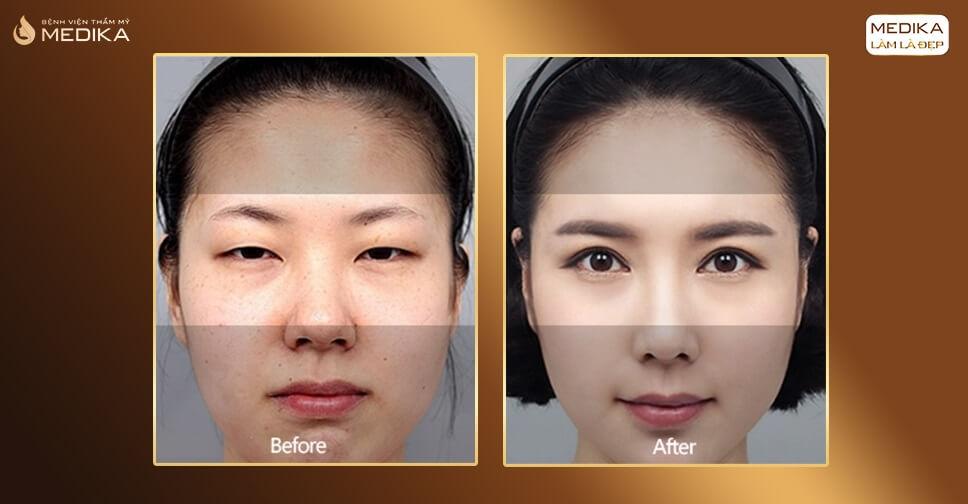 Cắt mí mắt Hàn Quốc có loại bỏ mỡ thừa da dư?