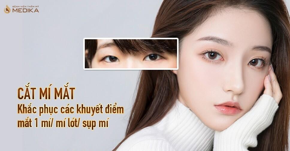 Cắt mí mắt - Khắc phục các khuyết điểm mắt 1 mí, mí lót, sụp mí