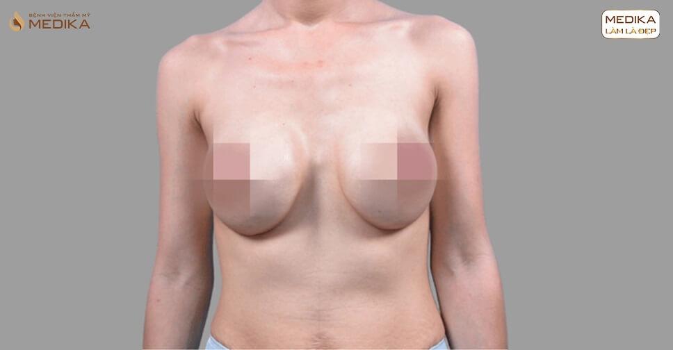 Câu chuyện phẫu thuật ngực hỏng đau lòng bởi Bệnh viện thẩm mỹ MEDIKA