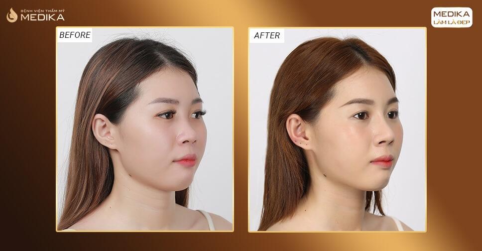 Có nên thẩm mỹ nâng mũi? Review địa chỉ nâng mũi đẹp bởi MEDIKA.vn