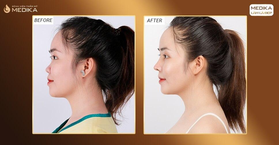 Có nên ưu tiên chọn lựa nâng mũi sụn nhân tạo bởi Bệnh viện thẩm mỹ MEDIKA?