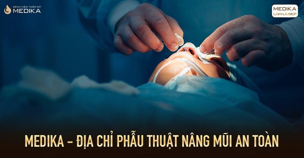 Cùng đánh giá các phương pháp phẫu thuật nâng mũi an toàn từ Bệnh viện thẩm mỹ MEDIKA