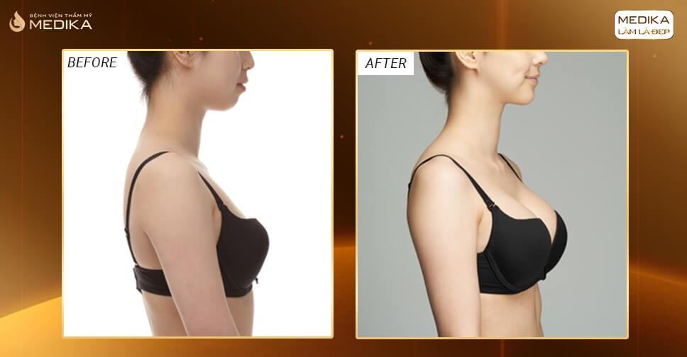 Hình ảnh sau khi nâng vòng 1 túi xốp Polytech - Bệnh viện thẩm mỹ MEDIKA