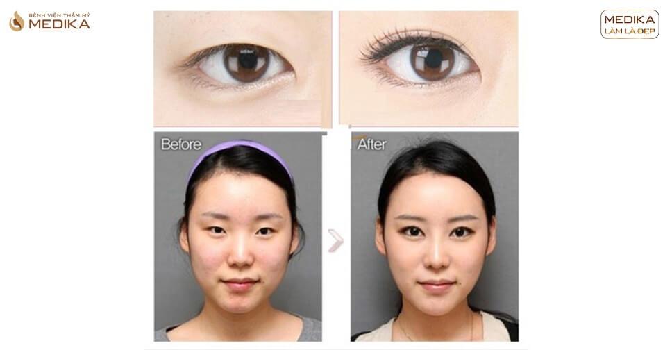 Mở rộng góc mắt - xu hướng thẩm mỹ mắt năm 2021