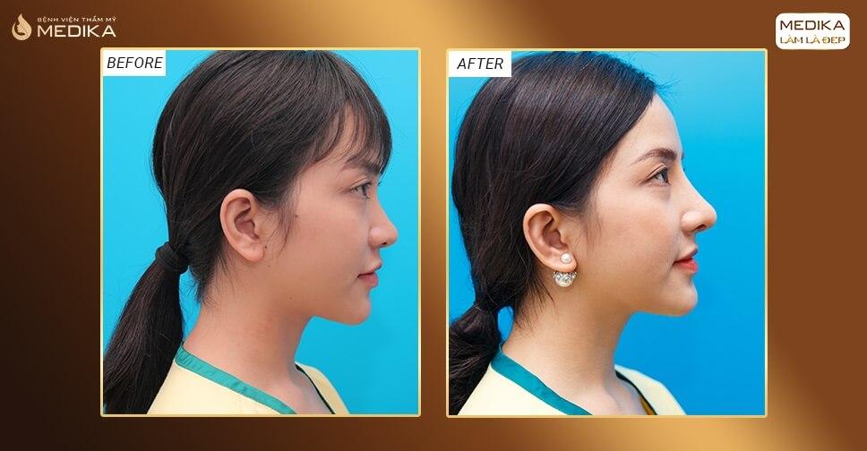 Nâng mũi bằng sụn sườn - Tuyệt chiêu chỉnh mũi hỏng và biến dạng bởi Bệnh viện thẩm mỹ MEDIKA