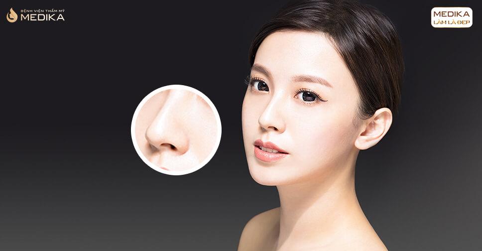 Nâng mũi bằng sụn tự thân bao lâu mới hồi phục hoàn toàn từ Bệnh viện thẩm mỹ MEDIKA