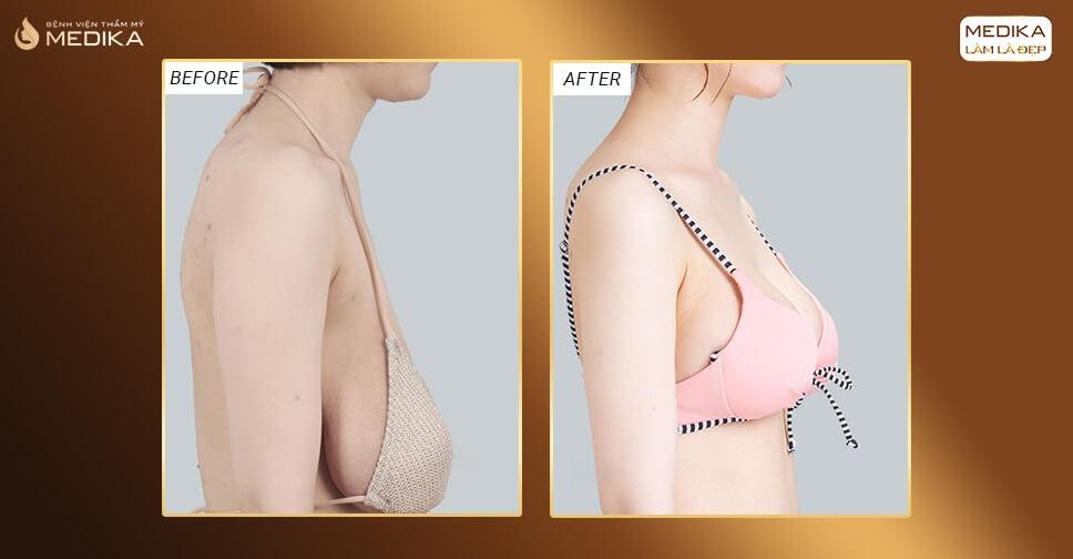 Nâng ngực chảy xệ cho phụ nữ U30 bởi Bệnh viện thẩm mỹ MEDIKA