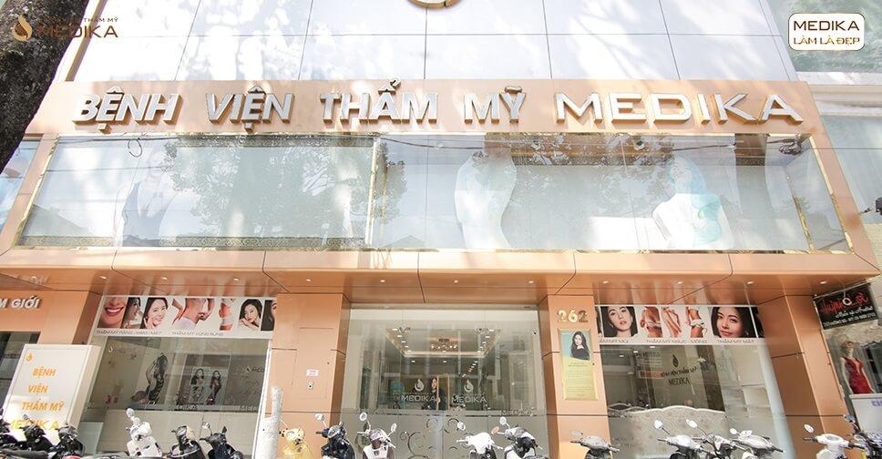 Nâng vòng 1 với phương pháp XỊN bởi Bệnh viện thẩm mỹ MEDIKA