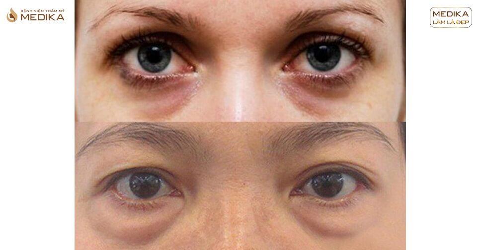 Những biến chứng thường gặp sau lấy mỡ mí mắt