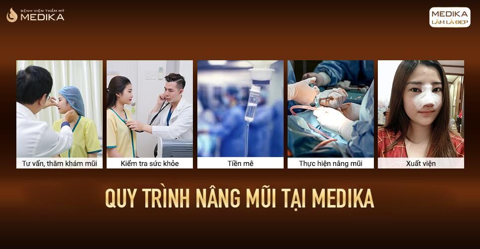 Những câu hỏi thường gặp khi nâng mũi bởi Bệnh viện thẩm mỹ MEDIKA