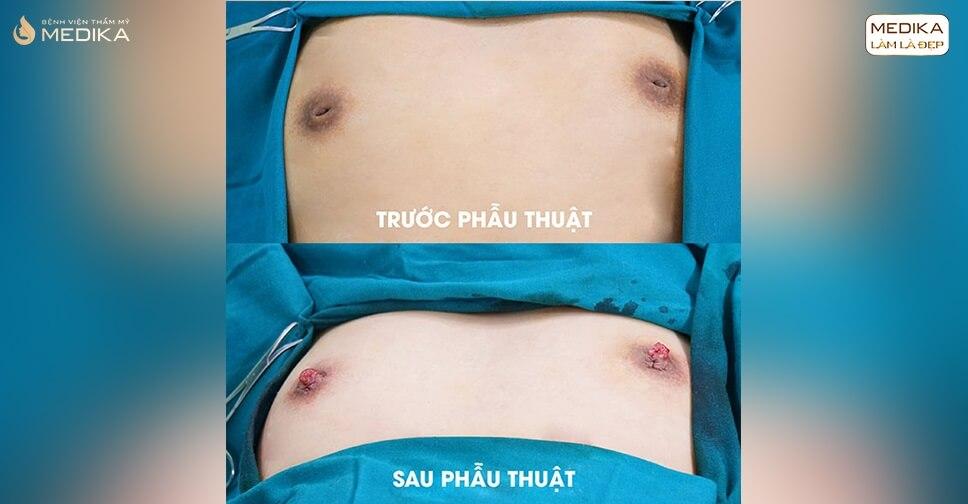 Phẫu thuật kéo núm vú tụt có làm ảnh hưởng đến tuyến sữa không?