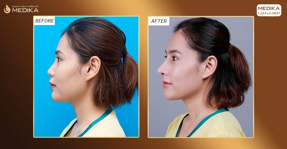 Phẫu thuật nâng mũi cấu trúc có khiến tướng số bạn thay đổi bởi Bệnh viện thẩm mỹ MEDIKA?