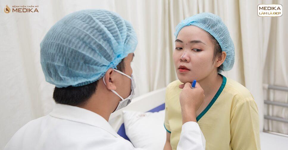 Phẫu thuật nâng mũi sau bao lâu sẽ hết sưng từ Bệnh viện thẩm mỹ MEDIKA?