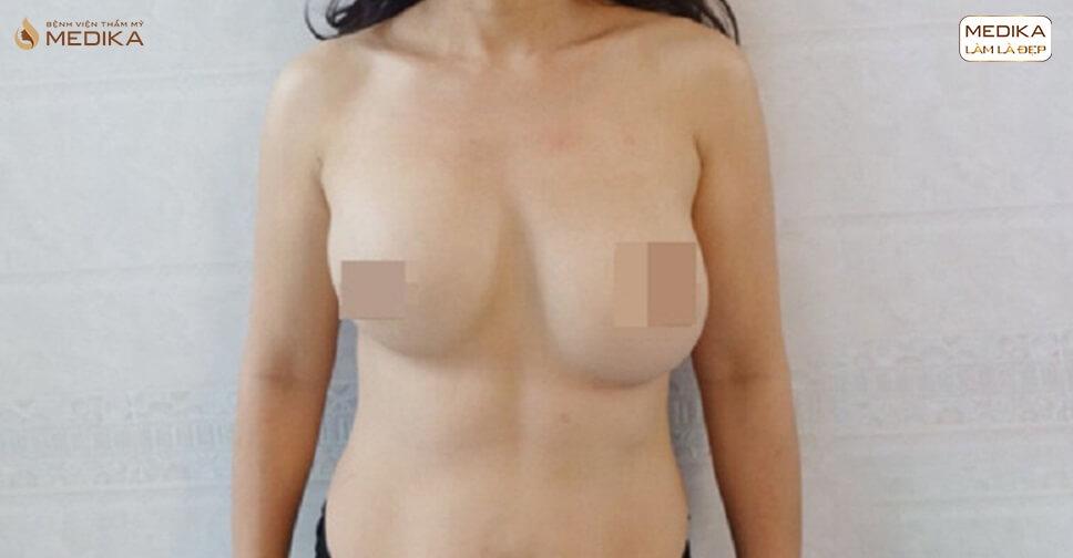 Phẫu thuật ngực hỏng nên thực hiện lại ở địa chỉ nào bởi Bệnh viện thẩm mỹ MEDIKA?