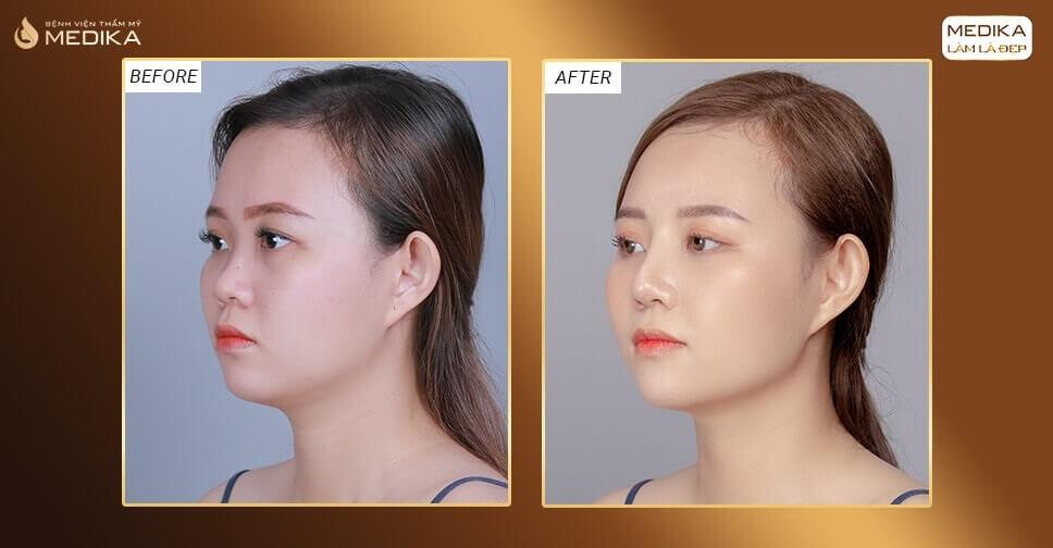 So sánh những phương pháp nâng mũi đẹp xu hướng 2021 bởi Bệnh viện thẩm mỹ MEDIKA