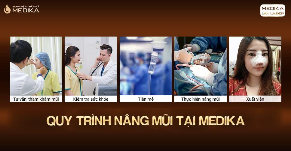 Nâng mũi sụn nhân tạo - Chất lượng sụn quyết định thành công ở Bệnh viện thẩm mỹ MEDIKA