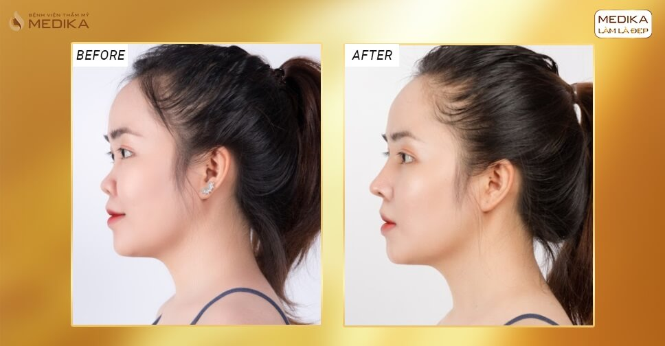Nâng mũi Surgiform có an toàn hơn các kĩ thuật truyền thống ở Bệnh viện thẩm mỹ MEDIKA?
