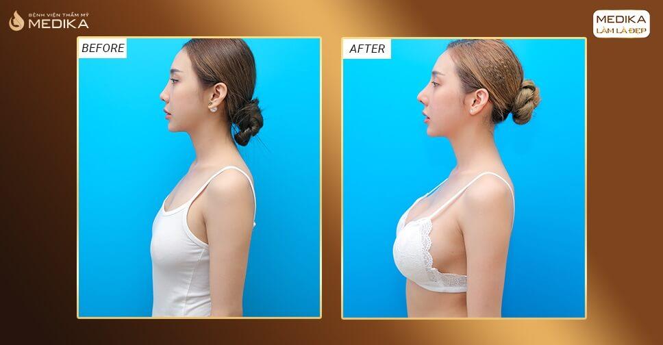 Phẫu thuật nâng ngực an toàn phụ thuộc 70% vào ekip bác sĩ tại Bệnh viện thẩm mỹ MEDIKA