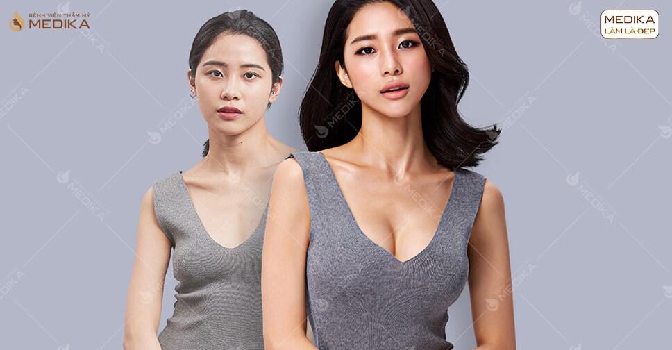 Phẫu thuật nâng ngực đẹp giúp chị em phụ nữ tự tin hơn ở Bệnh viện thẩm mỹ MEDIKA