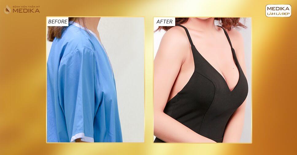 Phẫu thuật nâng ngực đẹp giúp ngực đẹp từng centimet ở Bệnh viện thẩm mỹ MEDIKA