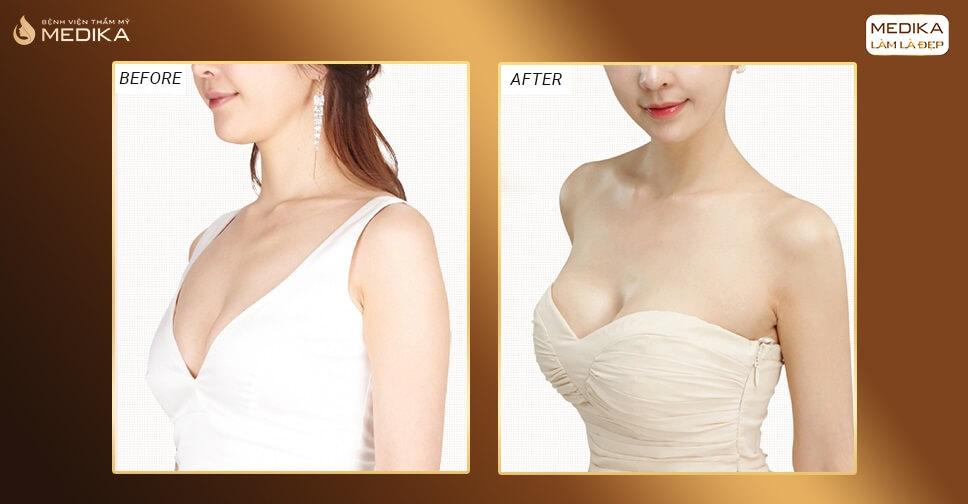 Quyết định lựa chọn túi xốp Polytech nâng ngực ở Bệnh viện thẩm mỹ MEDIKA