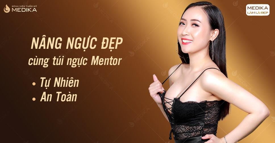 Túi Mentor lựa chọn nâng ngực hoàn hảo cho khách hàng ở MEDIKA.vn