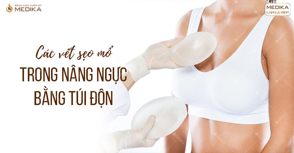 Các vết sẹo mổ trong nâng ngực bằng túi độn ở MEDIKA.vn