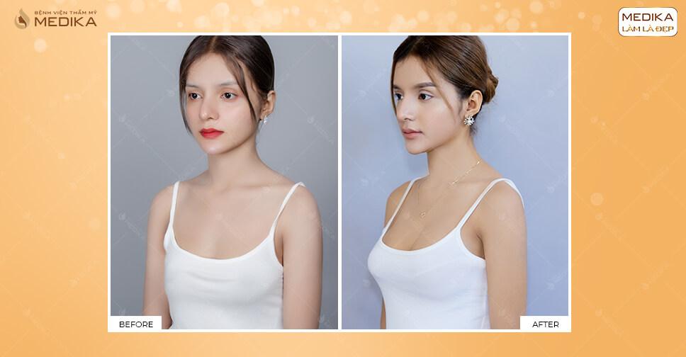 Các vết sẹo mổ trong nâng ngực bằng túi độn tại MEDIKA.vn