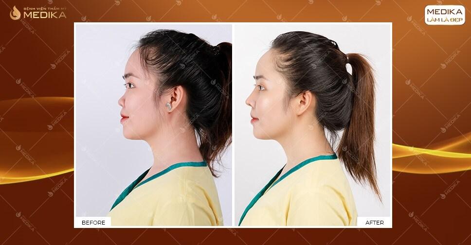 Các yếu tố nào ảnh hưởng đến giá nâng mũi tại MEDIKA.vn?