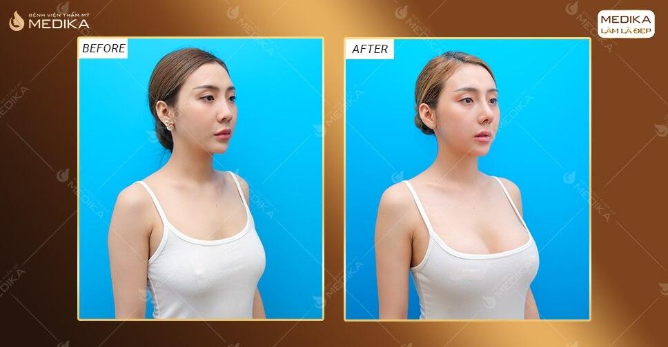 Cách chăm sóc sau khi nâng ngực giúp phục hồi nhanh chóng tại MEDIKA.vn