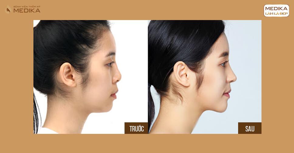 Cách khắc phục dáng mũi tẹt - đầu mũi to trong nâng mũi tại MEDIKA.vn