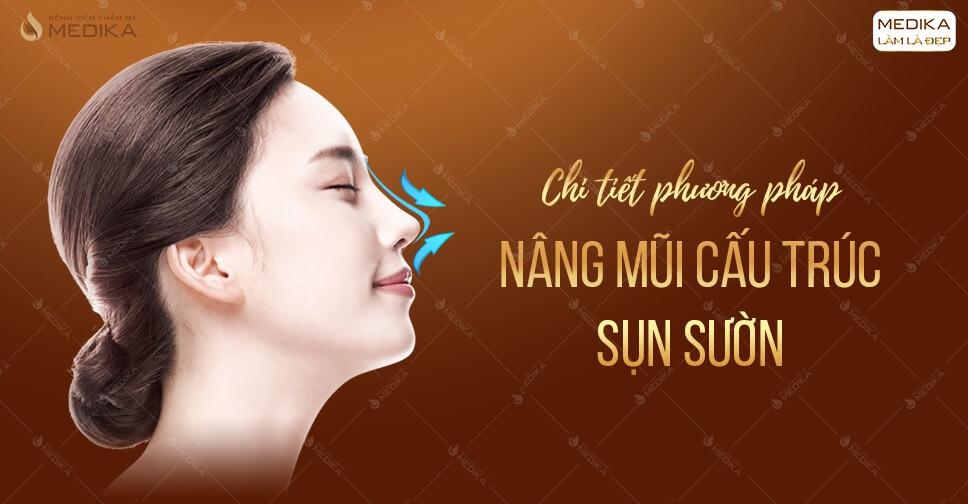 Chi tiết phương pháp nâng mũi cấu trúc sụn sườn ở MEDIKA.vn