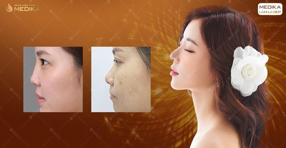 Chi tiết phương pháp nâng mũi cấu trúc sụn sườn tại MEDIKA.vn