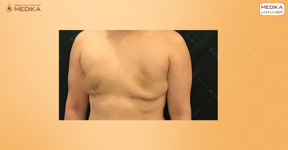 Hiểu về nâng ngực một cách chính xác tại MEDIKA.vn
