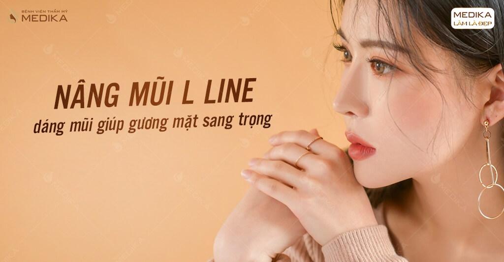 Nâng mũi L line cho người mũi thấp ở Bệnh viện thẩm mỹ MEDIKA.vn