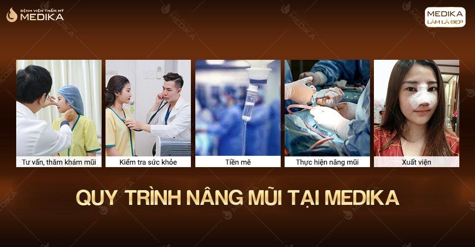 Nâng mũi lần đầu dễ hay khó ở Bệnh viện thẩm mỹ MEDIKA.vn?