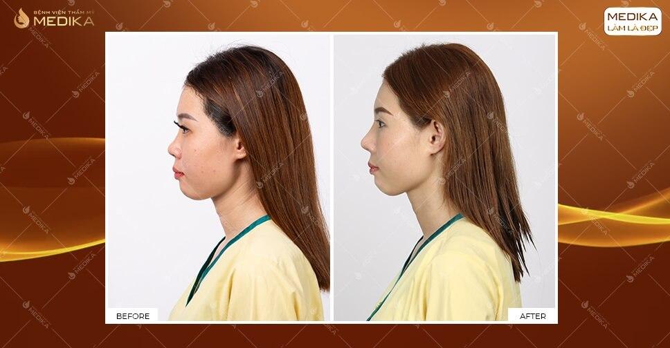 Nâng mũi thực hiện dễ dàng sau 60 phút tại MEDIKA.vn