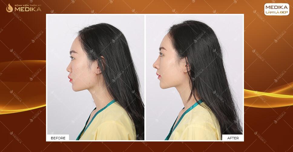 Nâng mũi với phương pháp hiện đại giúp mũi đẹp an toàn tại MEDIKA.vn