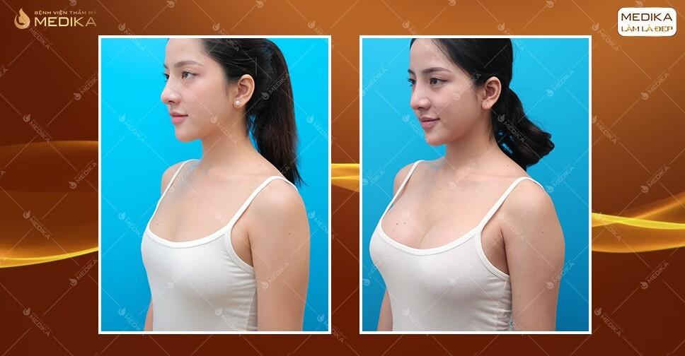 Những trường hợp nên và không nên phẫu thuật nâng ngực tại MEDIKA.vn