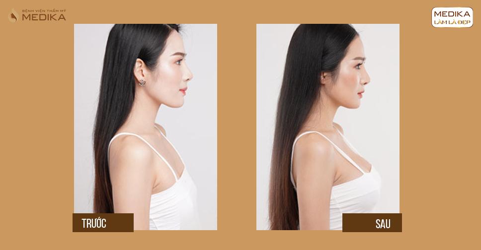 Tìm hiểu về biến chứng nếp gợn sóng sau nâng ngực tại MEDIKA.vn