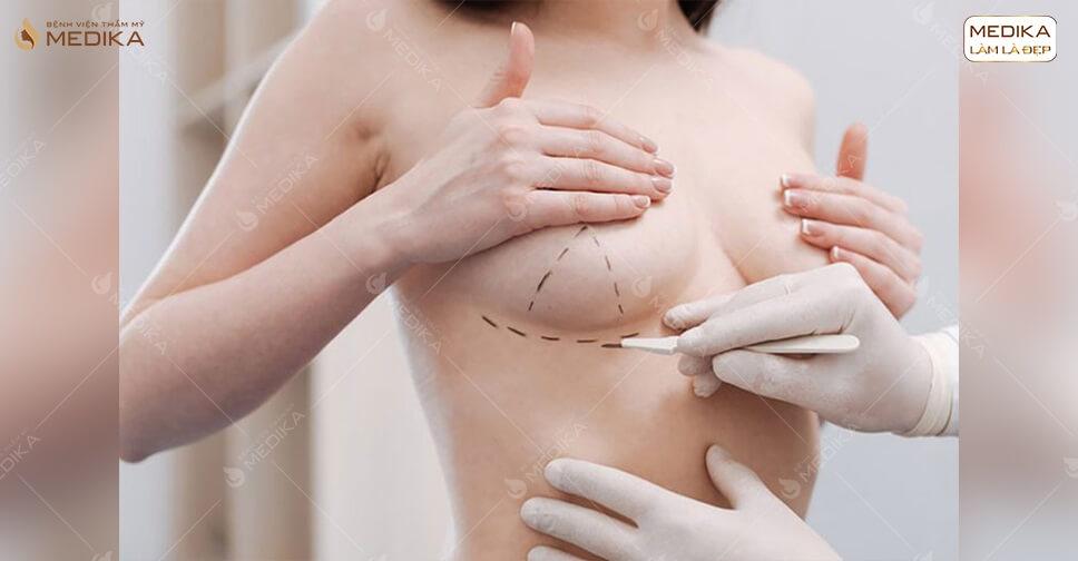 Tư thế nằm ngủ sau nâng ngực như thế nào là đúng tại MEDIKA.vn?