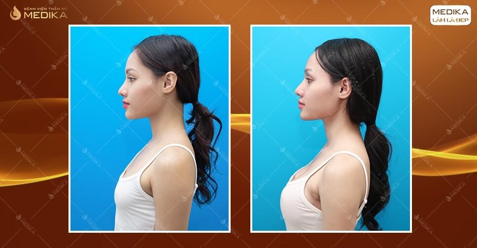 Túi Polytech - Dòng túi nâng ngực đẹp an toàn thế hệ mới tại MEDIKA.vn